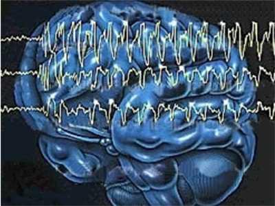癫痫病如何进行治疗效果比较好
